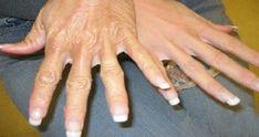 """Una parte del ciclo naturale della vita è invecchiare col passare degli anni. Tutti noi passiamo per questo processo, e non c'è nulla di strano in esso. I segni dell'invecchiamento compaiono anche sulla nostra pelle, sopratutto sotto forma di rughe. Esistono dei rimedi naturali capaci di rendere meno visibile questi segni. Le mani sono fra le parti più """"usate"""" del nostro corpo. Le rughe sulle mani sono causate da attività quotidiane come lavare i piatti, pulire, cucinare e tantissime altre…"""