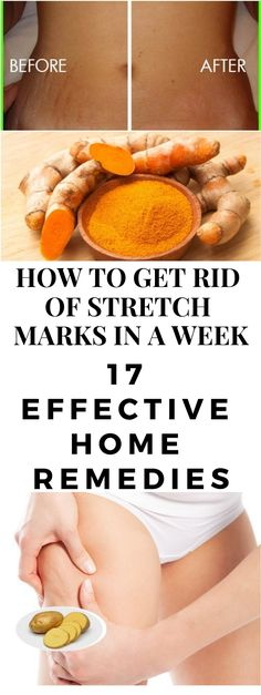 Slimming Remedies HOW TO GET RID OF STRETCH MARKS IN A WEEK - Stretch marks can be very embarrassing at times especially obvious ones. Find out how to get rid of stretch marks fast naturally in a week. Stomach Stretch Marks, Stretch Marks Cure, Stretch Marks On Legs, Stretch Mark Remedies, Stretch Mark Removal, Pregnancy Stretch Marks, How To Get Rid Of Stretch Marks, Herbal Remedies, Natural Remedies