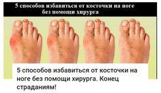 избавление от косточки на ногах