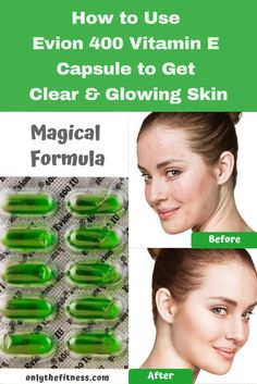 Evion 400 Uses & Benefits for Skin How to use evion 400 vitamin e capsule to get clear and glowing skin. And what are the benefits of evion 400 for the skin? Vitamine E Capsules, Vitamin E Capsules Uses, Vitamin E Uses, Vitamin E For Face, Beauty Skin, Health And Beauty, Benefits Of Vitamin E, Dry Eyes Causes, Skin Shine