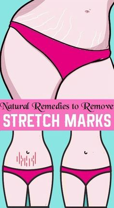 8 NATURAL REMEDIES TO REMOVE STRETCH MARKS PERMANENTLY