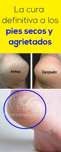 Skin Care Advice For Better Skin Now – Fashion Trends Beauty Nails, Diy Beauty, Nail Fungus, Face Skin Care, Tips Belleza, Aloe Vera Gel, Feet Care, Perfect Body, Face And Body