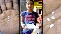 """Indian Girl Allegedly Has """"Cotton Tears"""" Oozing From Her Eyes Every Day - http://www.odditycentral.com/news/indian-girl-allegedly-has-cotton-tears-oozing-from-her-eyes-every-day.html"""