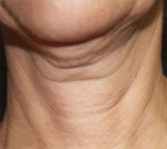 One of the most common signs of aging is the lack of firmness in the skin. As we age, skin becomes less elastic and it results in thinness, sagging, and fine lines, among others. Neck skin is less oily than the facial skin. It is delicate and that makes it more prone to premature aging. Saggy neck can add years to your appearance. Undoubtedly, aging is inevitable and so are its symptoms, but there are things you can do to prevent getting this. It is not permanent, there ...Read more
