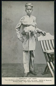 "Chang and Eng Bunker, the original ""Siamese Twins,"" lived a very interesting and storied life together. Creepy Old Photos, Cool Photos, Ghost Photos, Strange Photos, Creepy History, Human Oddities, History Of India, Medical History, African American History"