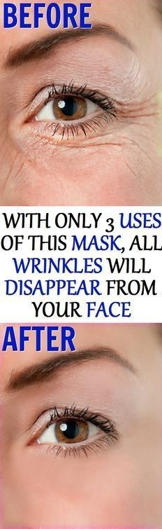 With Only 3 Uses Of This Mask All Wrinkles Will Disappear From Your Face