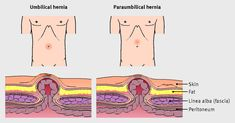 Features of umbilical and paraumbilical hernias. Paraumbilical hernias are situated just above the umbilicus, and unlike umbilical hernias, have no potential for spontaneous closure.