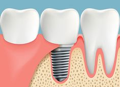 Dr Krauss is the best dentist in the Bakersfield for best dental care. He has performed thousands of complete smile restorations. Best Dentist, Dentist In, Dental Hygienist, Dental Care, Muse Widgets, Affordable Dental Implants, Natural Teething Remedies, Natural Teeth Whitening, Teeth Care