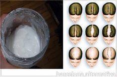 Champú de bicarbonato de sodio para evitar la caída de cabello y para hacerlo crecer La popularidad de bicarbonato de sodio está aumentando cada día, ya que los científicos vienen con nuevos hallazgos en cuanto a su poder curativo y una amplia gama de usos. Para saber, también se ha encontrado que contienen propiedades que …