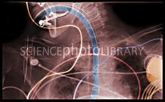 Endotracheal Intubation. Tracheal intubation is the placement of a flexible plastic tube into the trachea to protect the patient's airway and provide a means of mechanical ventilation.