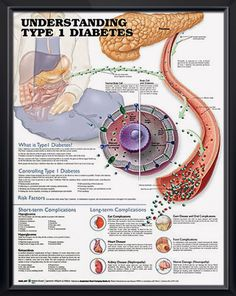 Type 1 Diabetes anatomy poster describes how Type 1 diabetes affects the process of insulin production by the pancreas. - from $10.69