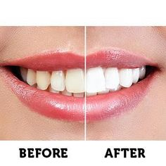 Amazon.com : Active Wow Teeth Whitening Charcoal Powder Natural : Beauty