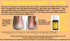 Lemon is one of my besties!  So versatile and so yummy in water.  You'll never squeeze another lemon after trying a drop of this in your water....but don't stop there.  Try this little tip, your feet will thank you!
