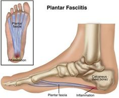 Plantar fasciitis is a condition causing heel pain. Supporting the arch, the plantar fascia, a thick band of tissue connecting the heel to the ball of the foot, can become inflamed or can tear. You experience pain when you put weight on your foot—particularly when taking your first steps in the morning. The pain can be felt at the heel, or along the arch and the ball of the foot.