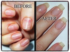 Some women are lucky enough to have their nails grow extremely fast and strong. If you are not among these women, we have prepared a couple of tricks for you that will promote your nail growth. If you need to wait weeks for your nails to grow, as long as Gel Nail Art, Nail Polish, Gel Vs Acrylic Nails, Cute Nails, My Nails, Ongles Forts, Natural Looking Acrylic Nails, Nails After Acrylics, Damaged Nails