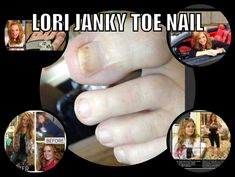 http://mkthlth2.digimkts.com  You have to see to believe it  toe fungus people  Lori and her toe nail fungus