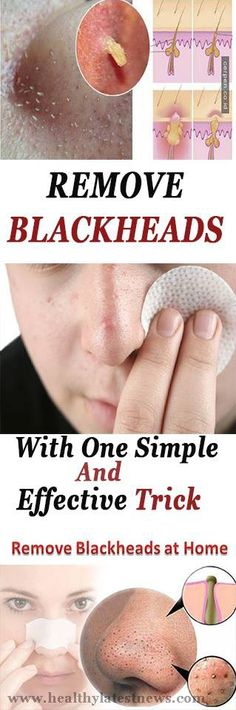 Remove Blackheads With One Simple And Effective Trick