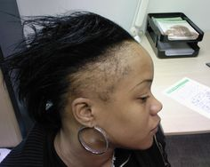 Black Hairstyles For Thin Edges Awesome Natural Hair  Thinning Edges  How To Grow Edges And Bald Spots
