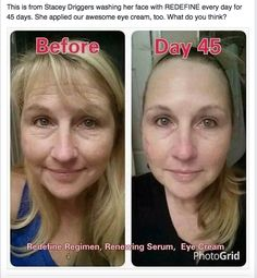 Stacey used Redefine eye cream and night renewing serum for 45 days