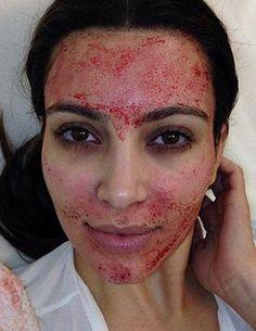 Kim Kardashian's Bloody Vampire Facial — Is This Nuts? Vote Get the latest news on Kim Kardashian Kim Kardashian, Kardashian Memes, Facial Treatment, Skin Treatments, Plasma Facial, Dermapen Microneedling, Vampire Facial, Derma Roller, Teen
