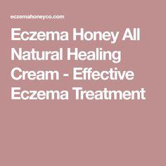 Eczema Honey All Natural Healing Cream - Effective Eczema Treatment
