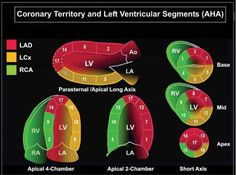 Heart Procedures, Cardiac Sonography, Aortic Stenosis, Tricuspid Valve, Mitral Valve, Heart Pump, Cardiology, Health Care, Medical