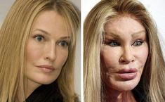 The Jocelyn Wildenstein plastic surgery story is really a sad one. The plastic surgeon did a full facelift, Botox injections, facial fillers, chin / cheek implants, and much more. Botched Plastic Surgery, Bad Plastic Surgeries, Plastic Surgery Gone Wrong, Celebrity Plastic Surgery, Charlotte Flair, Photoshop, Celebrities Before And After, Under The Knife, Lip Injections