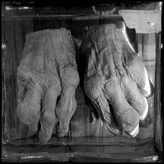 human hands showing rheumatism Dreams And Nightmares, Macabre, Curiosity, Museum, Hands, Inspiration, Biblical Inspiration, Museums, Inspirational