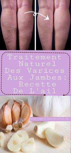 Traitement naturel des varices aux jambes: recette de l'ail Hello my pretty, I hope you all ok ! In today 's article I will offer you an easy and effective tip for naturally treating varicose vei Wellness Tips, Health And Wellness, Health Fitness, Healthy Nutrition, Healthy Tips, Psychological Well Being, Garlic Recipes, Varicose Veins, Health Eating