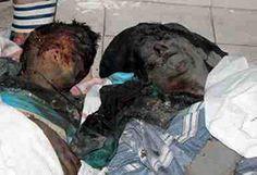 Palestinian Genocide. Burned alive.