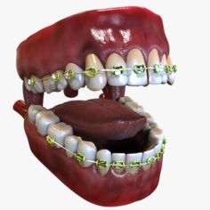 Bouche avec bretelles dentaires Modèle # Dentaire # Bouche # Modèle # Bretelles – Présentation des idées de flyers – Teeth braces – Lingual Do you understand there ar U. Teeth Braces Cost, Dental Braces, Types Of Braces, Misaligned Teeth, Human Mouth, Invisible Braces, Crooked Teeth, Natural Teeth Whitening, Suspenders