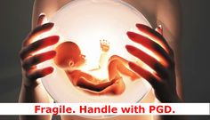 Find out about Fragile-X Syndrome and how you can prevent passing it on to your babies in the context of an IVF treatment with PGD.
