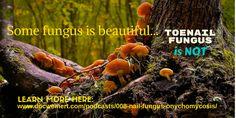 NAIL FUNGUS http://www.docweinert.com/podcasts/008-nail-fungus-onychomycosis/