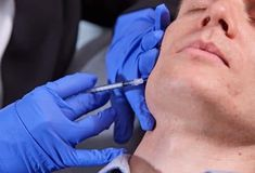 Safe & Effective Tear Trough Treatment at Surrey Skin Clinic Facial Fillers, Dermal Fillers, Tear Trough, Tears In Eyes, Skin Clinic, Medical History, Aging Process, Jawline, Acne Scars