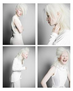 Connie Chiu, Connie is an albino Asian model who left Hong Kong for Sweden to market her naturally white hair and pale skin to the European fashion world, stirring up more superficial racial debates than Michael Jackson's scrotum. Albino Model, Shaun Ross, White Blonde Hair, Chinese Model, Poses, Beautiful People, Character Inspiration, Amazing, Pure Products