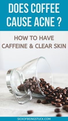 If you're wondering, does coffee cause acne? You're in the right place. Read more about the relation between coffee and acne. #clearskintips #acneandcoffee #acneclearingtips #skincareforacne… Acne Remedies, Herbal Remedies, Natural Herbs, Natural Health, Health Tips, Health And Wellness, Natural Acne Treatment, Clear Skin Tips, Living A Healthy Life