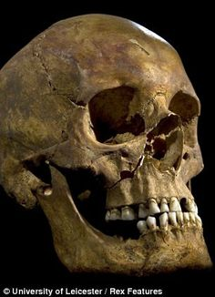 The skull of Richard III, found this year, after an astonishing 528 years underground in an unmarked grave now covered by a parking lot. Killed in battle, he was 32 years old when he died. He was the last Plantagenet king and his death in battle began the Tudor reign.