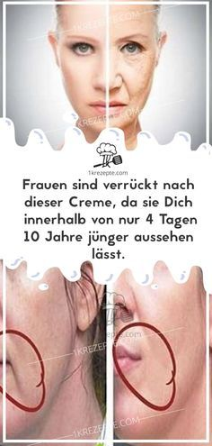 Women are crazy about this cream because they keep you .- Frauen sind verrückt nach dieser Creme, da sie Dich innerhalb von nur 4 Tagen Women are crazy about this cream because it makes you look 10 years younger in just 4 days. Beauty Care, Diy Beauty, Beauty Skin, Health And Beauty, Homemade Beauty, Beauty Ideas, Beauty Advice, Beauty Guide, Face Beauty
