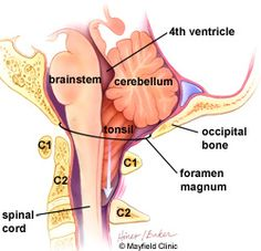 BRAIN STEM -its function- and COMPRESSION -what it thus affects: Acting as a relay center, the brainstem connects the cerebrum and cerebellum to the spinal cord. The brainstem performs many automatic functions such as breathing, heart rate, body temperature, wake and sleep cycles, digestion, sneezing, and coughing. Ten of the 12 cranial nerves originate in the brainstem.