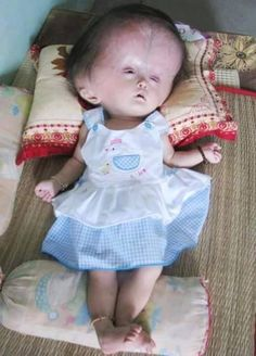 prayers to this baby she very sick  don't scroll without typing Amen https://www.facebook.com/photo.php?fbid=973642822697977 https://www.facebook.com/helen.bryant.5