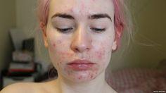 #Como venci a acne e recuperei minha autoestima - Globo.com: Globo.com Como venci a acne e recuperei minha autoestima Globo.com Katie…