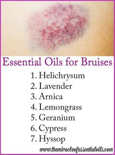 Awaken Yourself about the 7 LAVENDER Oil BENEFITS. LAVENDER DIY Recipes Got a bruise? Try healing it faster with essential oils #EssentialOilBlends #LavenderEssentialOil #Essentialoildiffusers