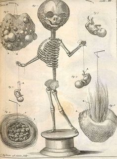 """A depiction of one of Frederik Ruysch's skeletons, here holding two foetal """"puppets"""" – Source (NB: this digital copy is not openly licensed, © The British Library Board)"""