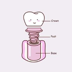 When it comes to tooth replacement options, dental implants are your best bet! The longevity & practicality of these little guys make them a breeze for patients compared to other options like removable dentures pc: @thetoothbooth #dentalhumor