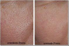 Erweiterte Poren kommen sehr häufig vor und werden oft durch Make-up verdeckt. Besser ist es, die Ursachen herauszufinden und zu behandeln. In diesem Beitrag erfährst du mehr über dieses Thema.