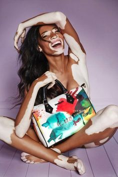 Chantelle Brown-Young aka Winnie Harlow in der aktuellen Kampagne für Desigual....:
