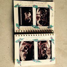 pregnancyjournal journal pregnancy zwangerschap dagboek boek baby ideeen diy plakboek echo foto