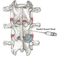 amicus,injections,spine,spinal,cord,facet,SI,joint,L5-S1