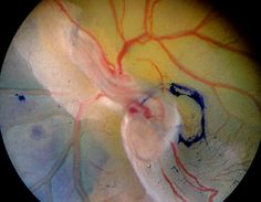 Chicken embryo 72 hours old, through a binoculair