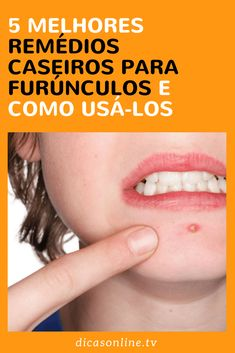 Remédios caseiros para furúnculos Healthy Tips, Workout, Fitness, Beauty, Al Dente, Home Remedies For Earache, Tooth Pain, Natural Medicine, Remedies